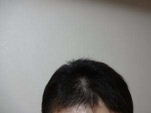 6/2前髪